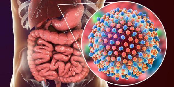 virusli gepatitlar